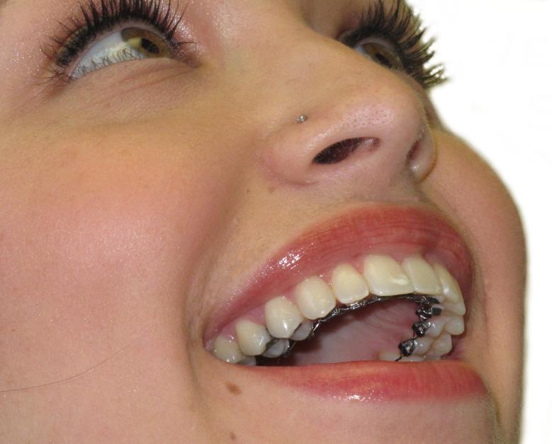 hidden-braces1